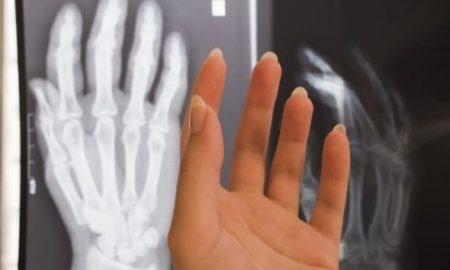 身長がどのくらい伸びるかわかる骨年齢の調べ方